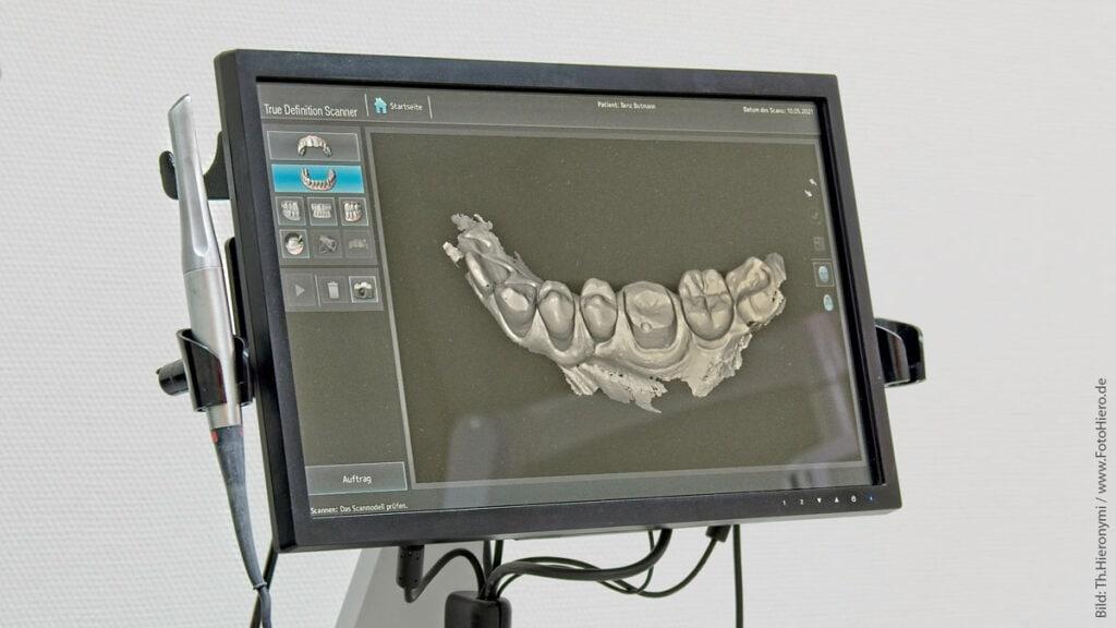 Zahnarzt Botmann - True Definition Scanner
